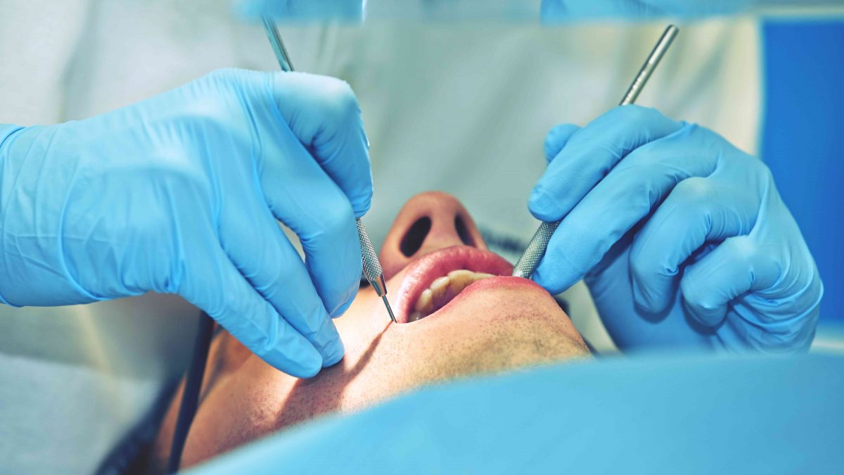 Causes, Symptoms and Treatment of Gum Disease in Pune