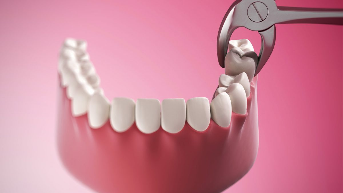 Tooth Extraction / Teeth Removal Cost in Pune
