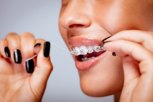 DENTAL HEALTH: Tips for flossing with Braces