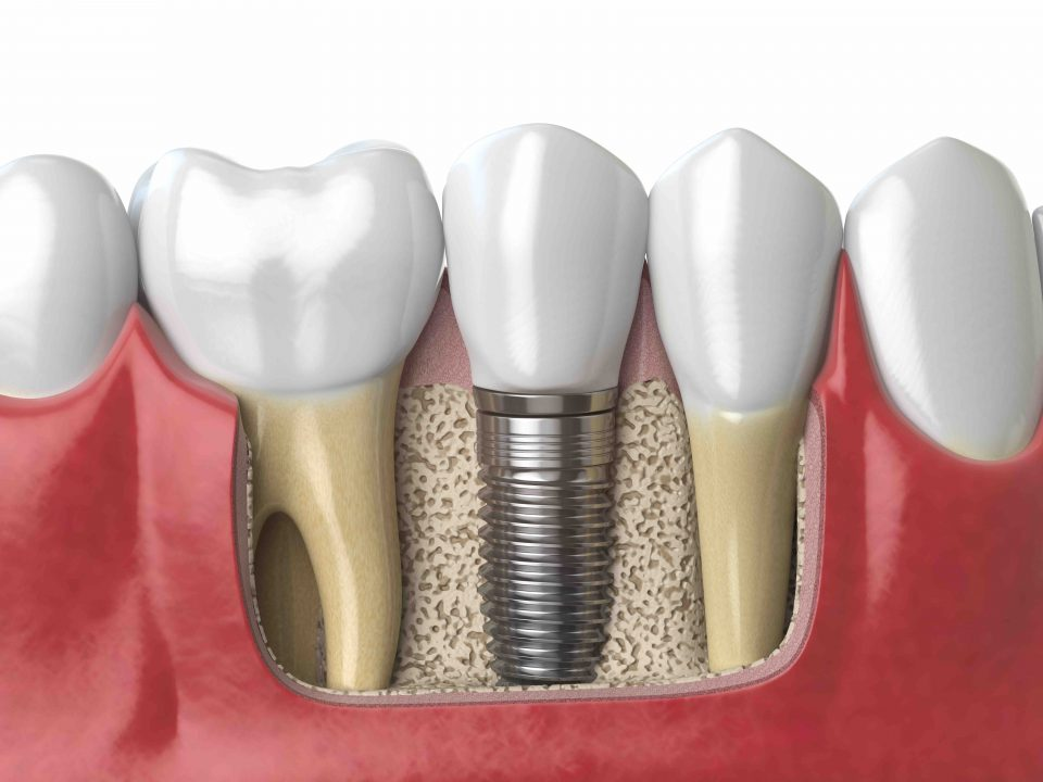 Tooth Implant Cost in Pune