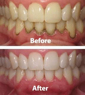 Gum Disease Treatment in Pune
