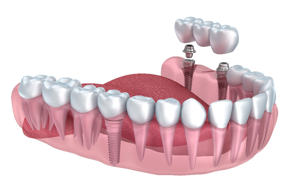 Dental / Tooth Implant Cost in Pune