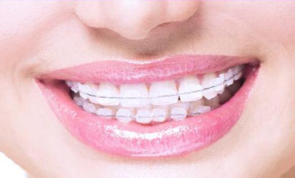 Best Orthodontic Treatment in Pune