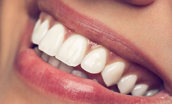Teeth Whitening Treatment Cost in Pune